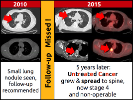 Lung nodule was seen and appropriate follow-up was recommended, but follow-up imaging was not obtained, leading to progression of cancer.  Lost Souls Radiology Recommendation Tracker helps to prevent patients being lost to follow-up.